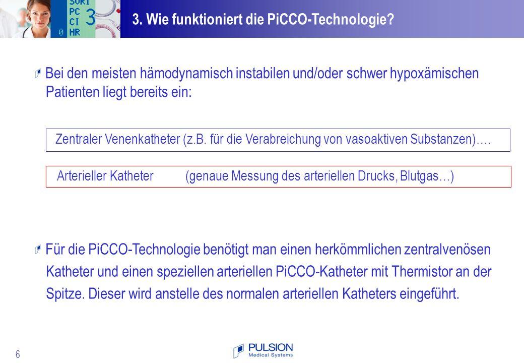 57 4.Wie benutzt man die PiCCO-Technologie. 1.