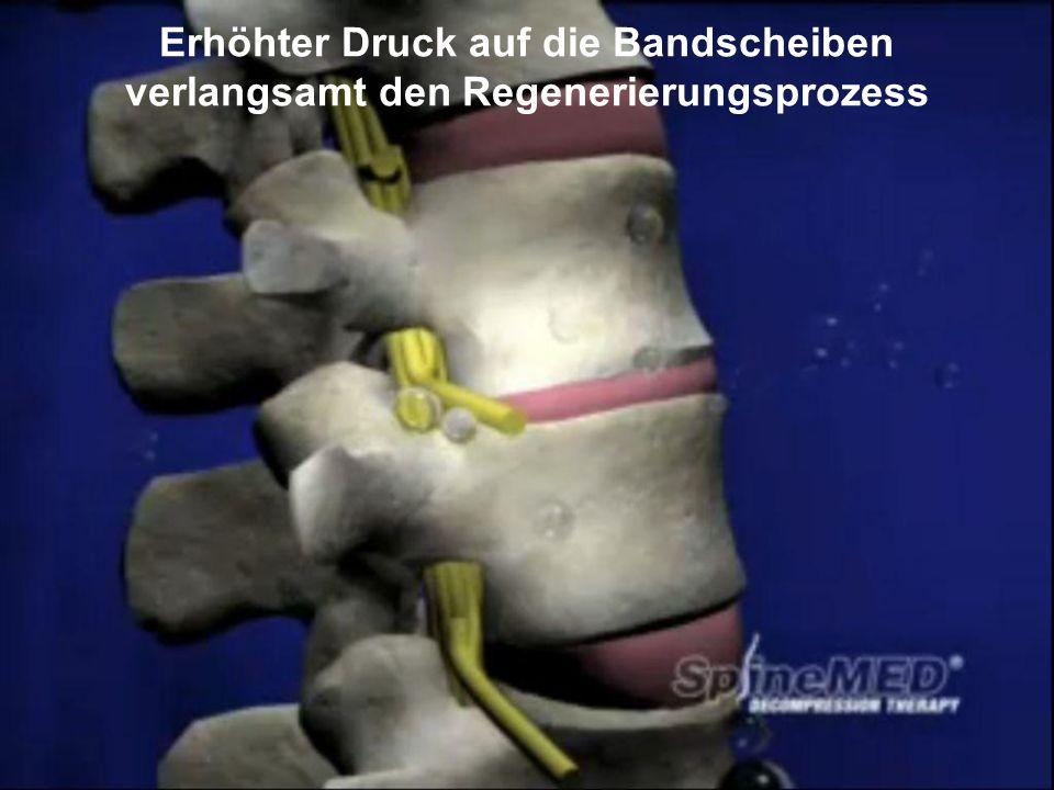Copyright © SpineMED GmbH All Rights Reserved Erhöhter Druck auf die Bandscheiben verlangsamt den Regenerierungsprozess