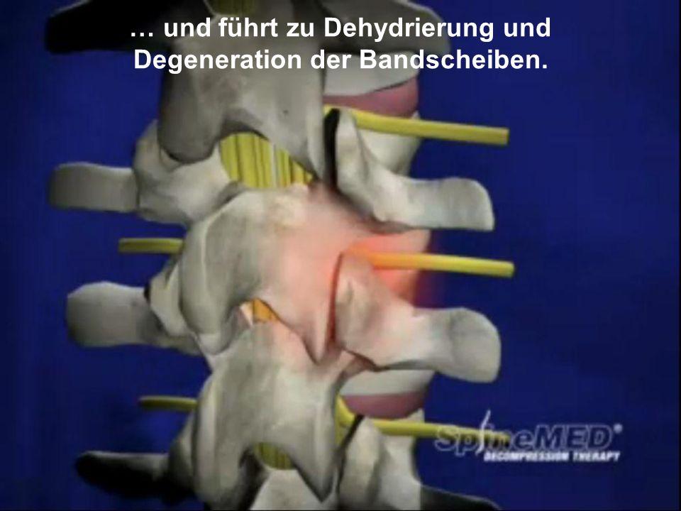Copyright © SpineMED GmbH All Rights Reserved … und führt zu Dehydrierung und Degeneration der Bandscheiben.