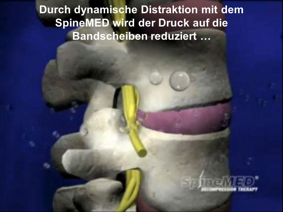 Copyright © SpineMED GmbH All Rights Reserved Durch dynamische Distraktion mit dem SpineMED wird der Druck auf die Bandscheiben reduziert …