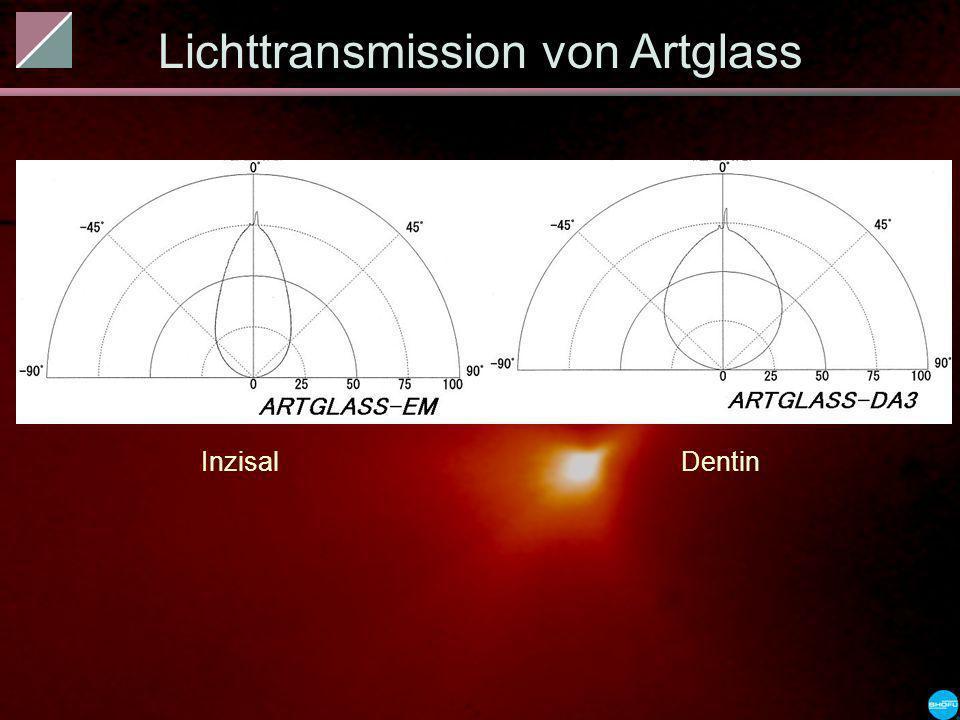 Lichttransmission von Artglass InzisalDentin