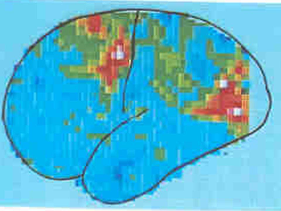 Bild 2:Wahrnehmende Tätigkeit Person verfolgt mit den Augen einen bewegten Gegenstand aktiviert sind: Hinterhauptlappen frontales Augenfeld motorisches Feld im Stirnlappen