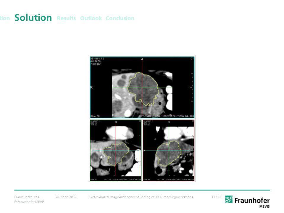 © Fraunhofer MEVIS 11 / 15Frank Heckel et al.Sketch-based Image-independent Editing of 3D Tumor Segmentations28. Sept. 2012 Solution Results Outlook C