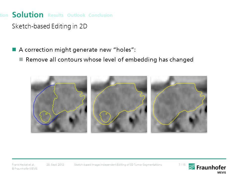 © Fraunhofer MEVIS 7 / 15Frank Heckel et al.Sketch-based Image-independent Editing of 3D Tumor Segmentations28. Sept. 2012 Solution A correction might