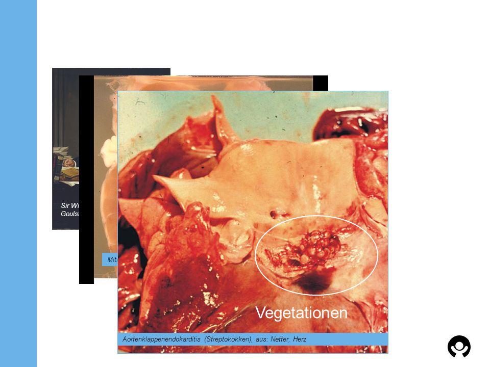 Sir William Osler, Goulstonian Lectures 1885 Mitralklappenendokarditis (Staphylokokken), aus: Netter, Herz Vegetationen Aortenklappenendokarditis (Str