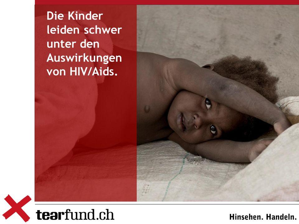 Die Kinder leiden schwer unter den Auswirkungen von HIV/Aids.
