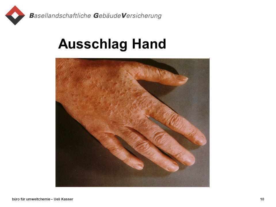 büro für umweltchemie – Ueli Kasser10 Ausschlag Hand