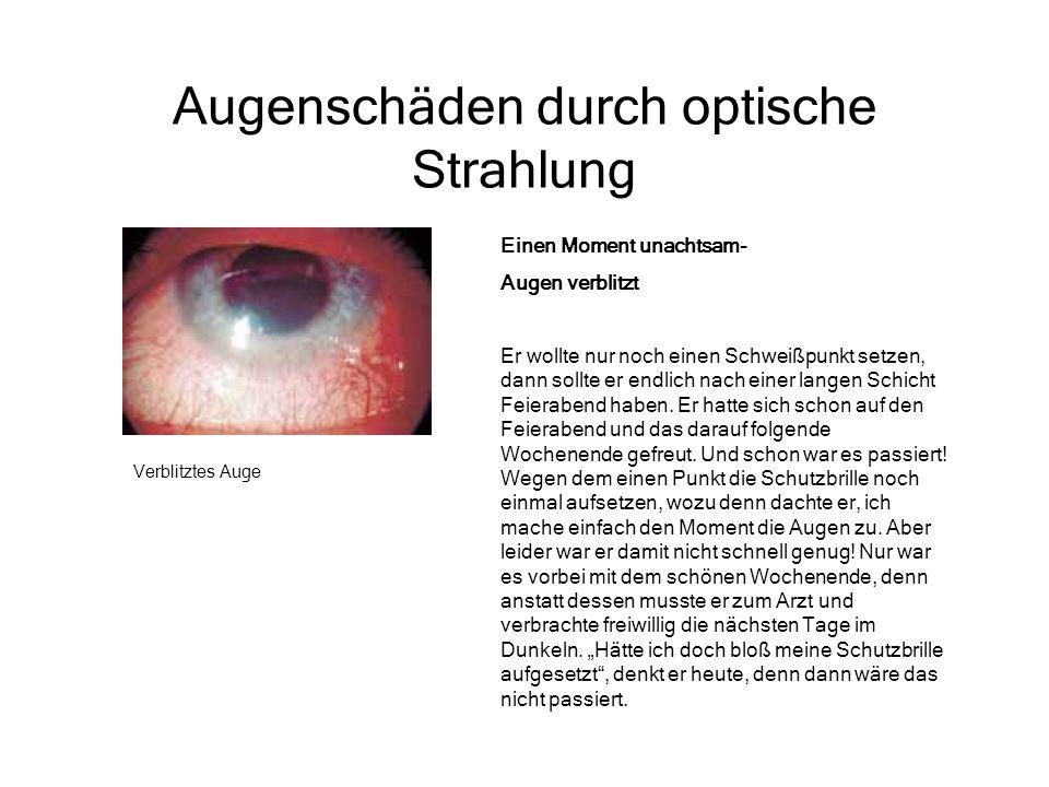 Augenschäden durch optische Strahlung Verblitztes Auge Einen Moment unachtsam- Augen verblitzt Er wollte nur noch einen Schweißpunkt setzen, dann soll
