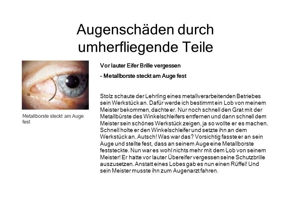 Augenschäden durch umherfliegende Teile Metallborste steckt am Auge fest Vor lauter Eifer Brille vergessen - Metallborste steckt am Auge fest Stolz sc