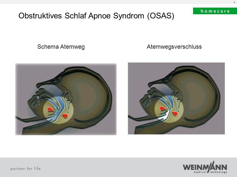 8 Obstruktives Schlaf Apnoe Syndrom (OSAS) Schema AtemwegAtemwegsverschluss