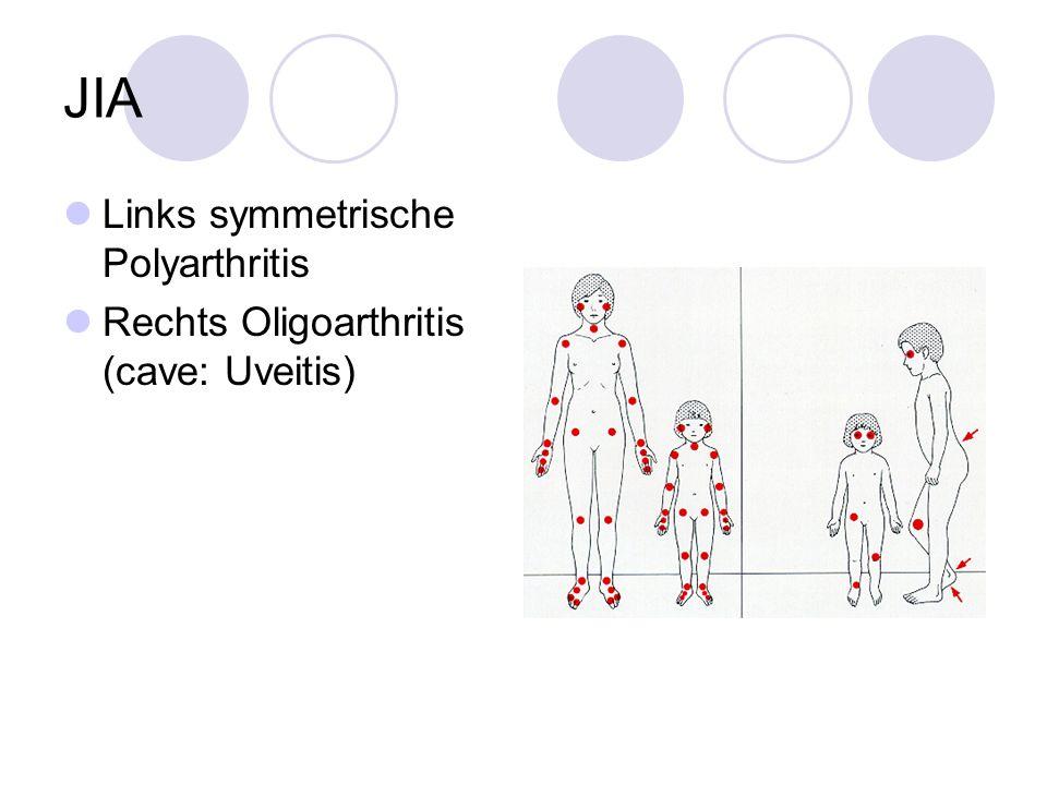 JIA Links symmetrische Polyarthritis Rechts Oligoarthritis (cave: Uveitis)