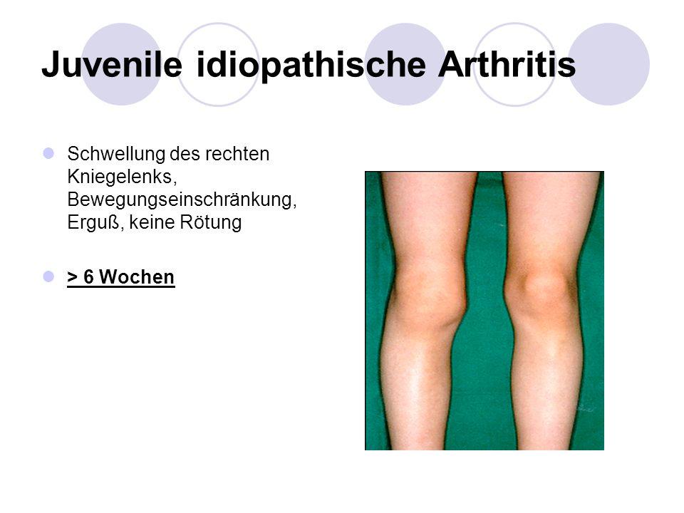 Juvenile idiopathische Arthritis Schwellung des rechten Kniegelenks, Bewegungseinschränkung, Erguß, keine Rötung > 6 Wochen