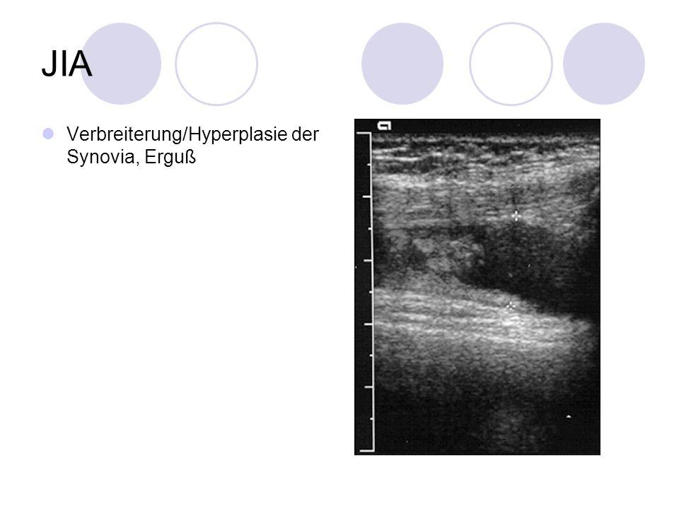JIA Verbreiterung/Hyperplasie der Synovia, Erguß