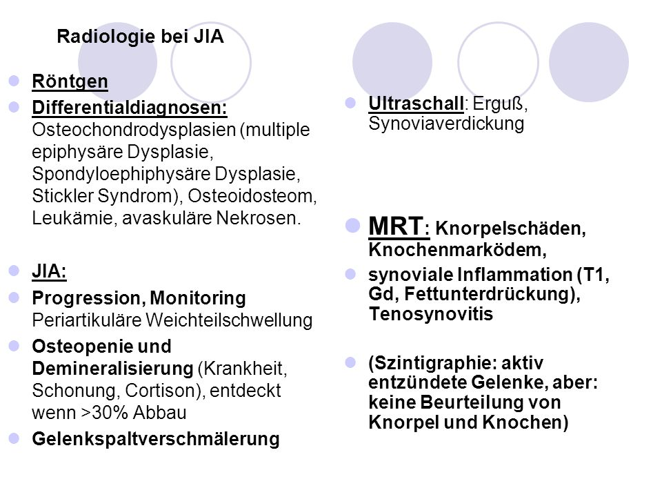 Radiologie bei JIA Röntgen Differentialdiagnosen: Osteochondrodysplasien (multiple epiphysäre Dysplasie, Spondyloephiphysäre Dysplasie, Stickler Syndr
