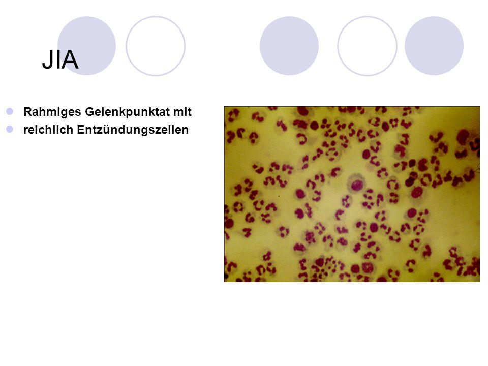 ILAR Classification of juvenile idiopathic arthritis (JIA) and uveitis (Petty RE et al.
