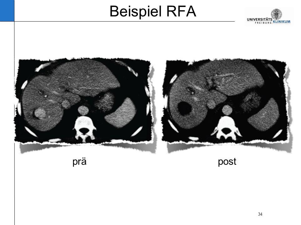 34 Beispiel RFA präpost