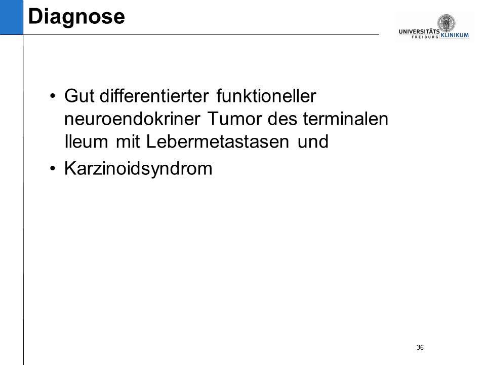 36 Gut differentierter funktioneller neuroendokriner Tumor des terminalen Ileum mit Lebermetastasen und Karzinoidsyndrom 36 Diagnose