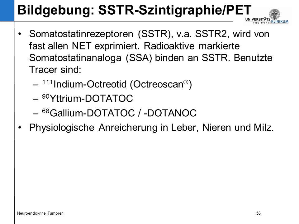 56 Somatostatinrezeptoren (SSTR), v.a. SSTR2, wird von fast allen NET exprimiert.