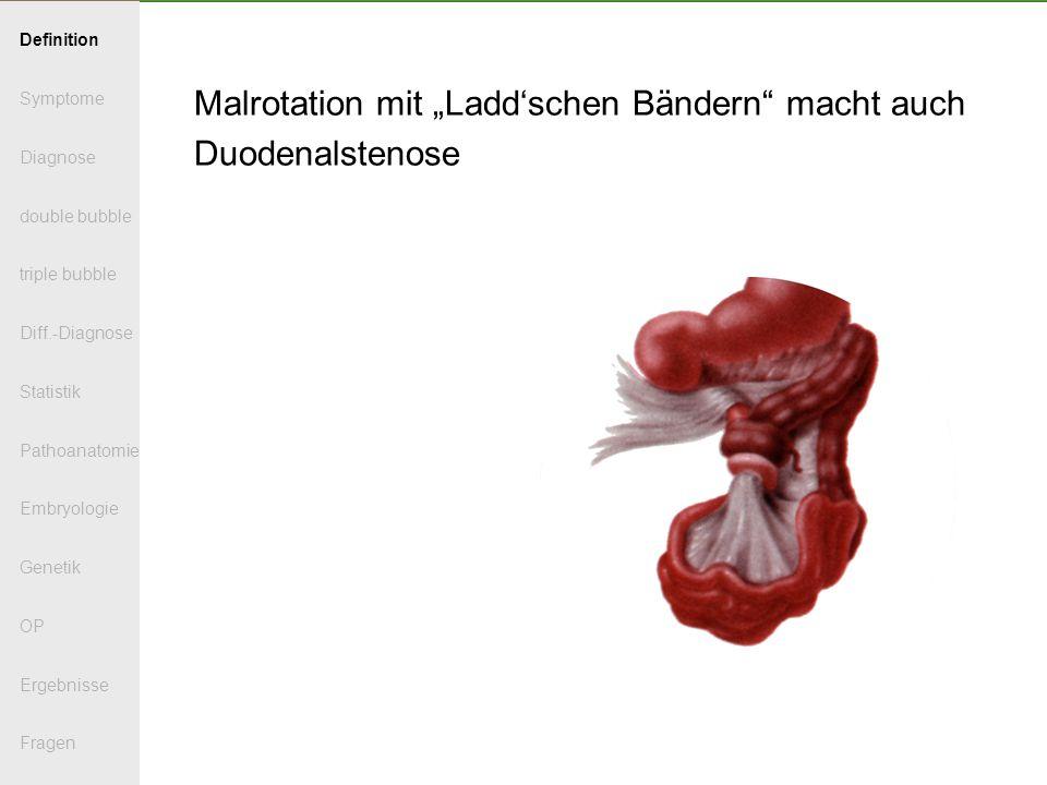 Malrotation mit Laddschen Bändern macht auch Duodenalstenose Definition Symptome Diagnose double bubble triple bubble Diff.-Diagnose Statistik Pathoanatomie Embryologie Genetik OP Ergebnisse Fragen