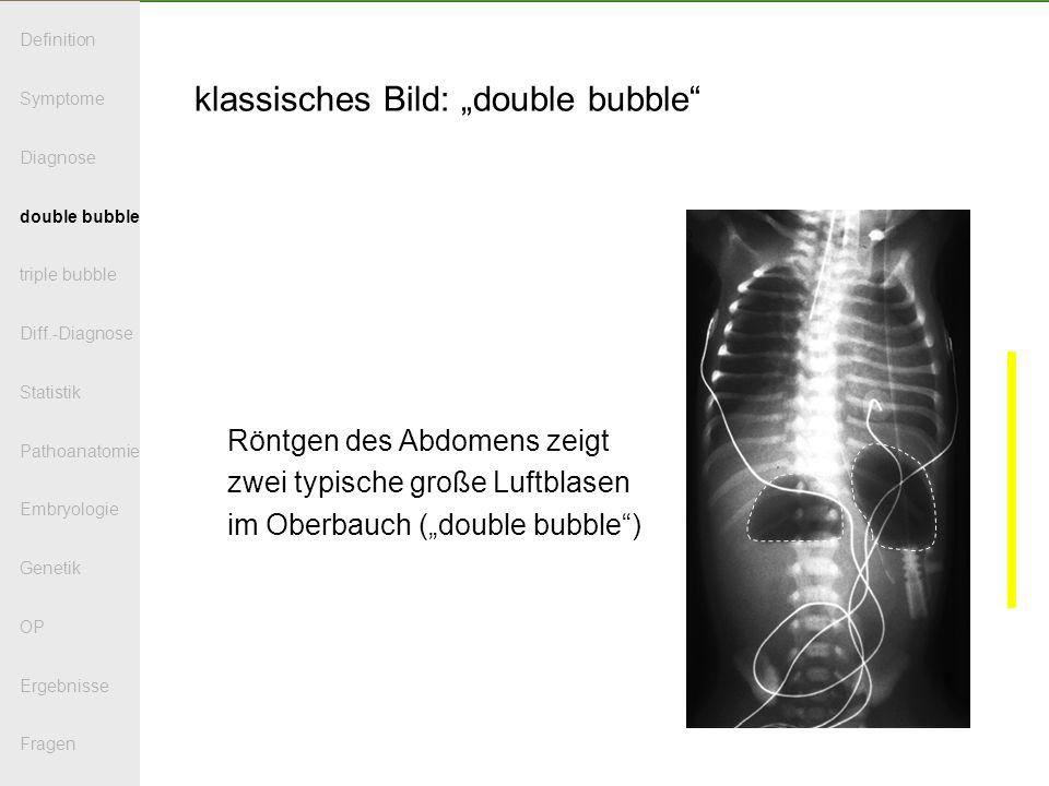 klassisches Bild: double bubble Röntgen des Abdomens zeigt zwei typische große Luftblasen im Oberbauch (double bubble) Definition Symptome Diagnose double bubble triple bubble Diff.-Diagnose Statistik Pathoanatomie Embryologie Genetik OP Ergebnisse Fragen