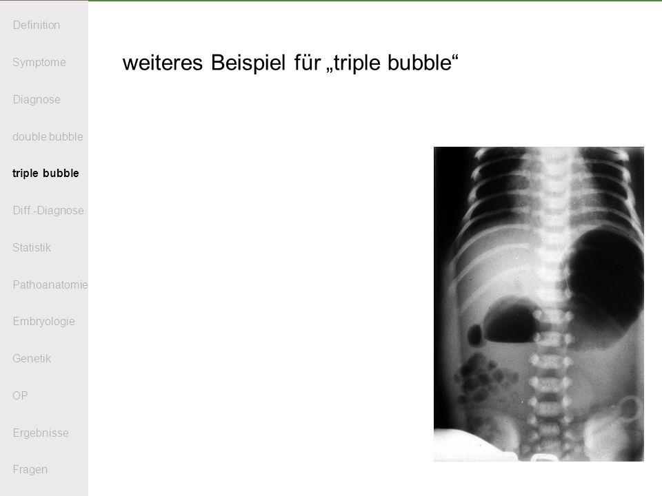 weiteres Beispiel für triple bubble Definition Symptome Diagnose double bubble triple bubble Diff.-Diagnose Statistik Pathoanatomie Embryologie Genetik OP Ergebnisse Fragen