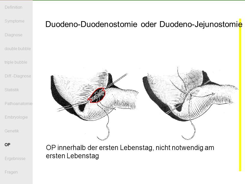 Duodeno-Duodenostomie oder Duodeno-Jejunostomie OP innerhalb der ersten Lebenstag, nicht notwendig am ersten Lebenstag Definition Symptome Diagnose double bubble triple bubble Diff.-Diagnose Statistik Pathoanatomie Embryologie Genetik OP Ergebnisse Fragen
