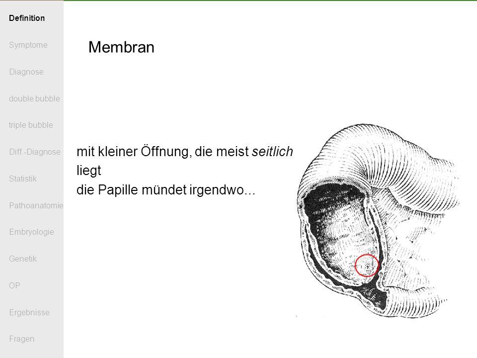 Membran offen Membran mit der Pinzette zurückgezogen (das Duodenum ist eröffnet) Definition Symptome Diagnose double bubble triple bubble Diff.-Diagnose Statistik Pathoanatomie Embryologie Genetik OP Ergebnisse Fragen