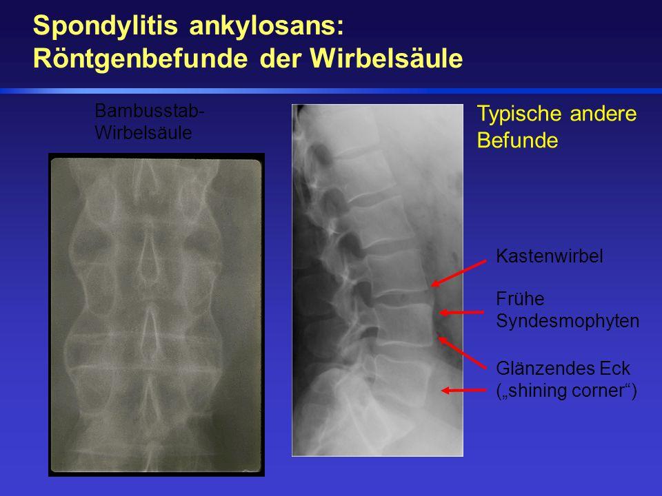 Bambusstab- Wirbelsäule Typische andere Befunde Kastenwirbel Frühe Syndesmophyten Glänzendes Eck (shining corner) Spondylitis ankylosans: Röntgenbefun