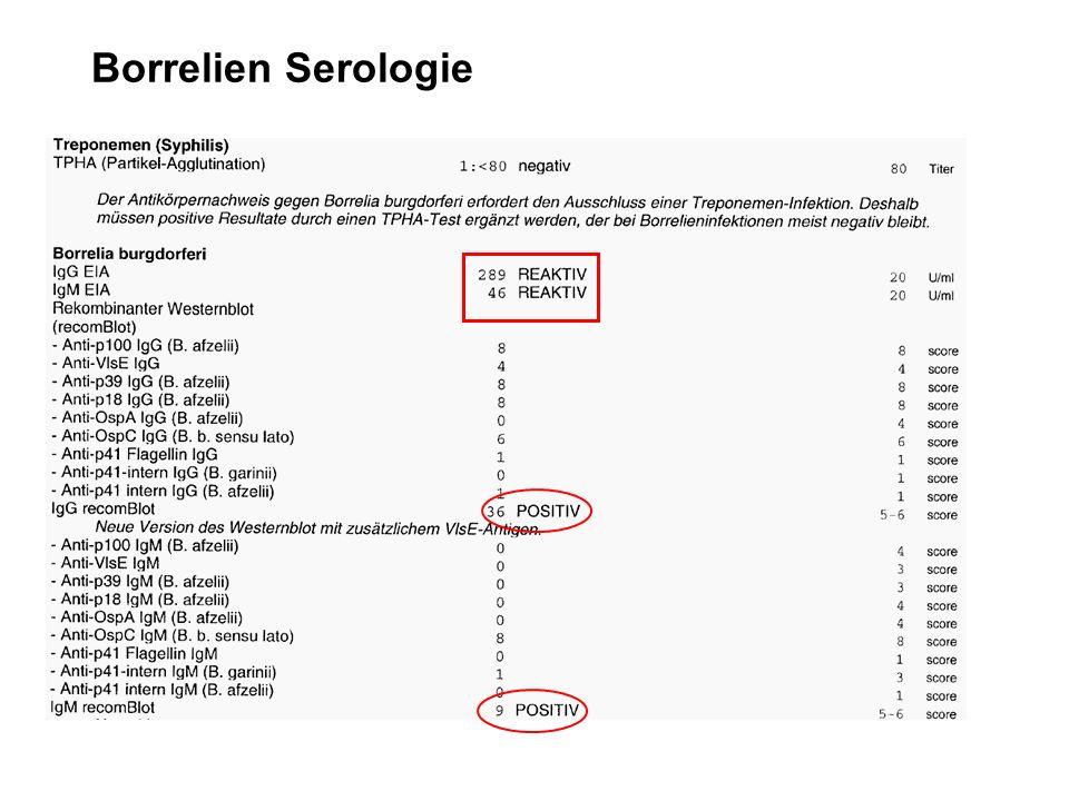 Borrelien Serologie