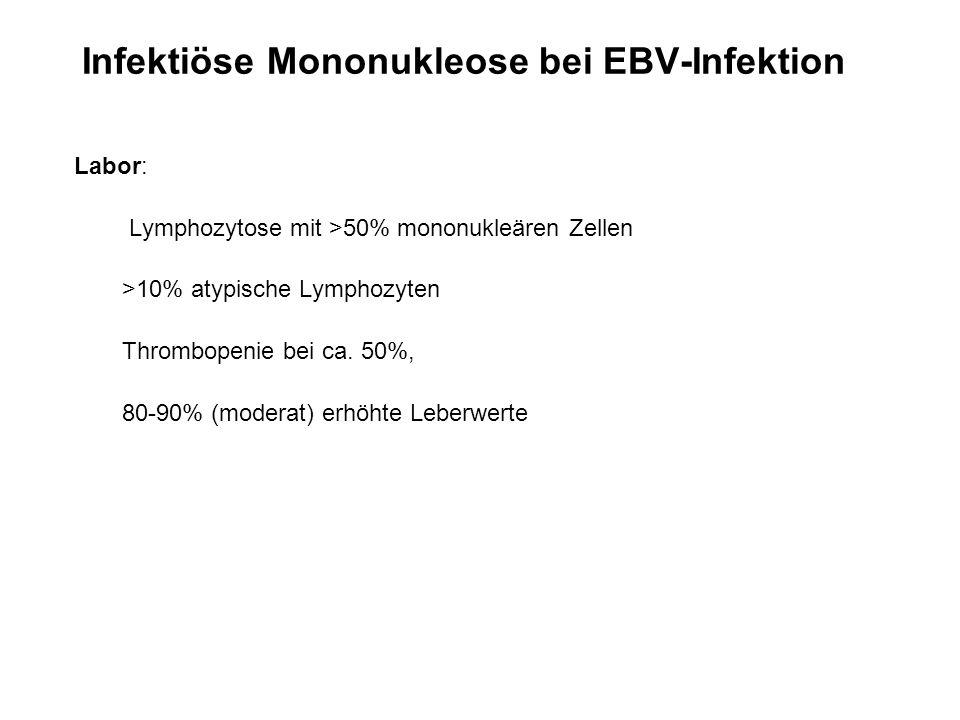 Infektiöse Mononukleose bei EBV-Infektion Labor: Lymphozytose mit >50% mononukleären Zellen >10% atypische Lymphozyten Thrombopenie bei ca. 50%, 80-90