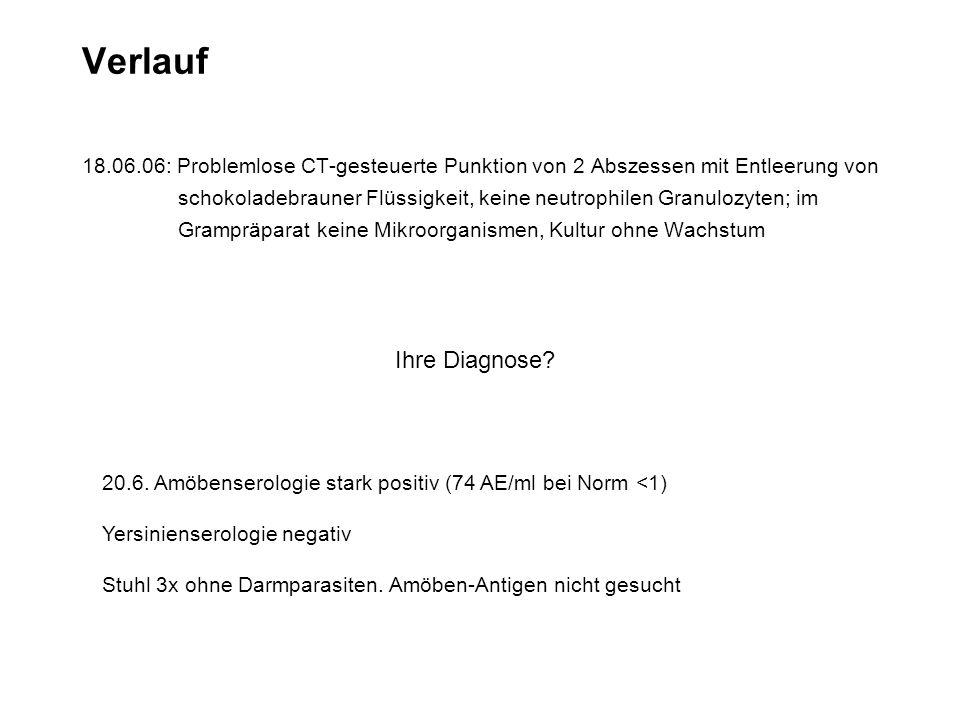 Verlauf 18.06.06: Problemlose CT-gesteuerte Punktion von 2 Abszessen mit Entleerung von schokoladebrauner Flüssigkeit, keine neutrophilen Granulozyten