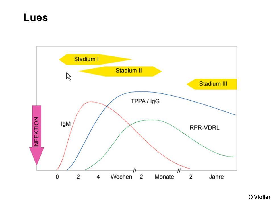 Masern Serologie zuverlässig IgM sind positiv bei klinischem Exanthem Erregernachweis mit PCR aus Wangenabstrich in ersten 2 Wochen möglich