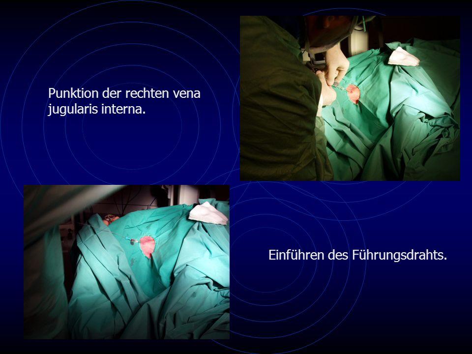 Punktion der rechten vena jugularis interna. Einführen des Führungsdrahts.