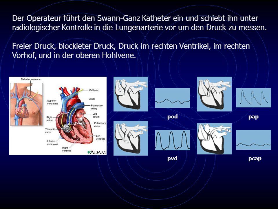 Der Operateur führt den Swann-Ganz Katheter ein und schiebt ihn unter radiologischer Kontrolle in die Lungenarterie vor um den Druck zu messen.