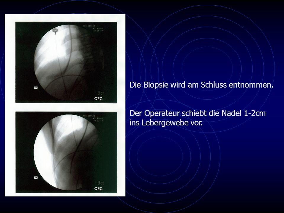 Die Biopsie wird am Schluss entnommen. Der Operateur schiebt die Nadel 1-2cm ins Lebergewebe vor.