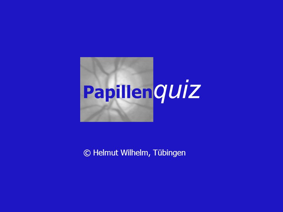 A.Stauungspapillen B.Drusenpapillen C.Hohe Hyperopie D.Bilat. Papillitis E.Atrophie bei chron. Stp