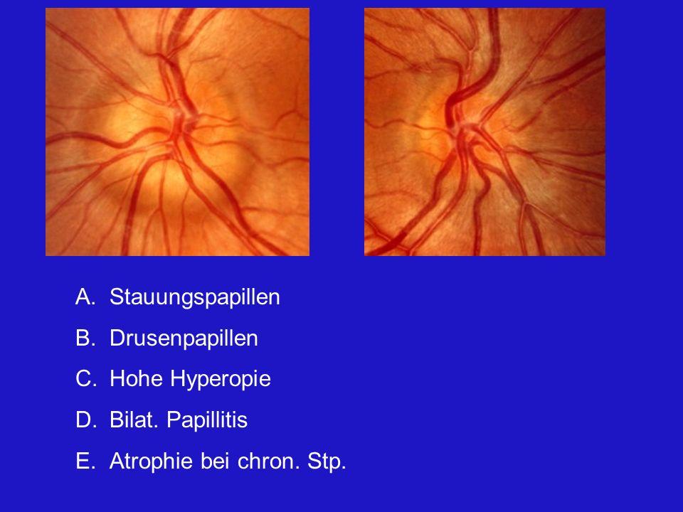 A.Stauungspapillen B.Drusenpapillen C.Hohe Hyperopie D.Bilat. Papillitis E.Atrophie bei chron. Stp.