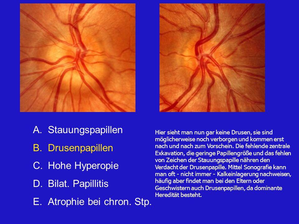A.Stauungspapillen B.Drusenpapillen C.Hohe Hyperopie D.Bilat. Papillitis E.Optikusneuropathie