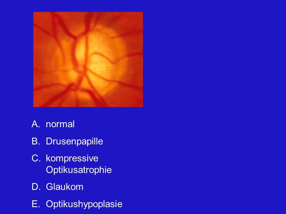 A.normal B.Drusenpapille C.kompressive Optikusatrophie D.Glaukom E.Optikushypoplasie Typischer Befund einer insgesamt randständig exkavierten Papille.