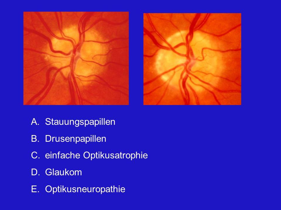 A.Stauungspapillen B.Drusenpapillen C.einfache Optikusatrophie D.Glaukom E.Optikusneuropathie