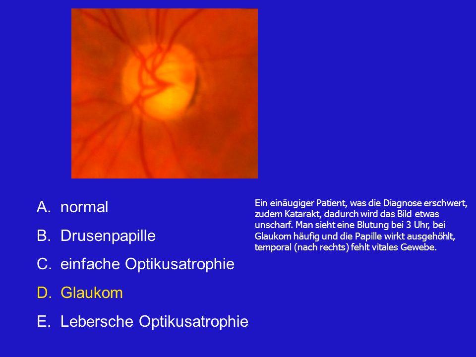 A.normal B.Drusenpapille C.einfache Optikusatrophie D.Glaukom E.Lebersche Optikusatrophie Ein einäugiger Patient, was die Diagnose erschwert, zudem Katarakt, dadurch wird das Bild etwas unscharf.