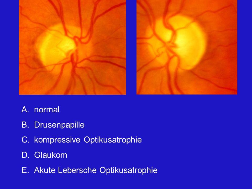 A.normal B.Drusenpapille C.kompressive Optikusatrophie D.Glaukom E.Akute Lebersche Optikusatrophie Die Papillen sind blass, eindeutig ist es auf der im rechten Bild, links könnte der Befund noch normal sein.