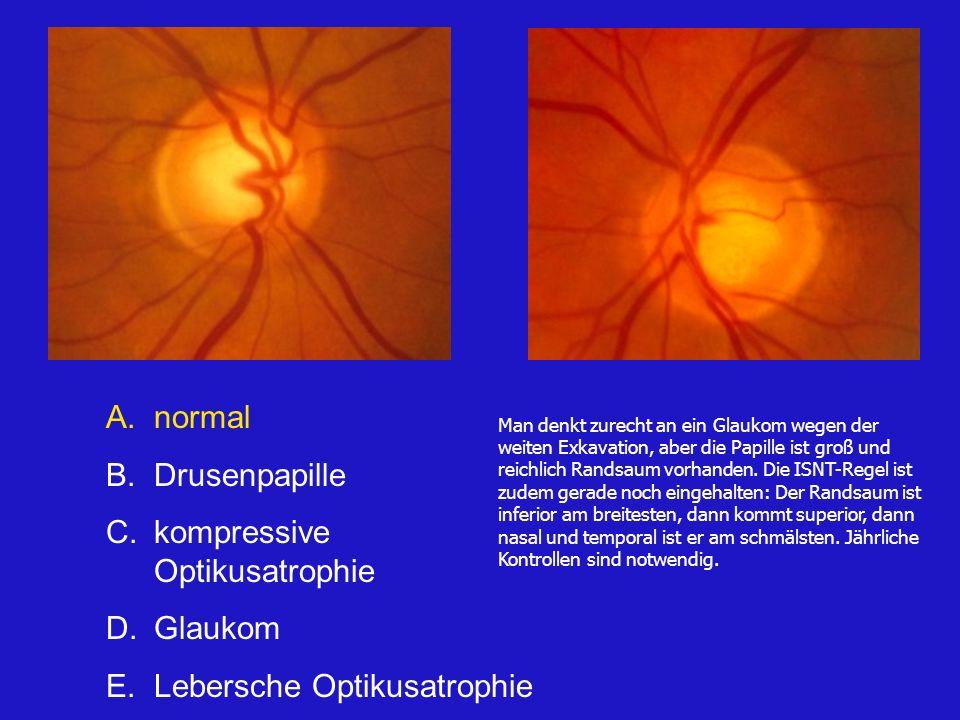 A.normal B.Drusenpapille C.kompressive Optikusatrophie D.Glaukom E.Lebersche Optikusatrophie Man denkt zurecht an ein Glaukom wegen der weiten Exkavation, aber die Papille ist groß und reichlich Randsaum vorhanden.