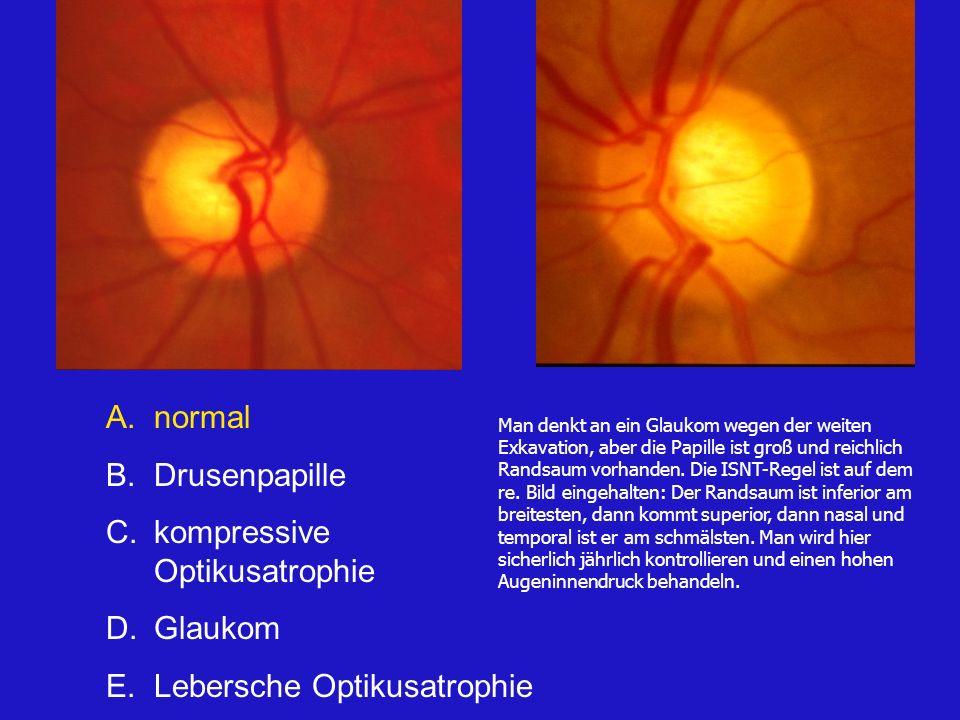 A.normal B.Drusenpapille C.kompressive Optikusatrophie D.Glaukom E.Lebersche Optikusatrophie Man denkt an ein Glaukom wegen der weiten Exkavation, aber die Papille ist groß und reichlich Randsaum vorhanden.