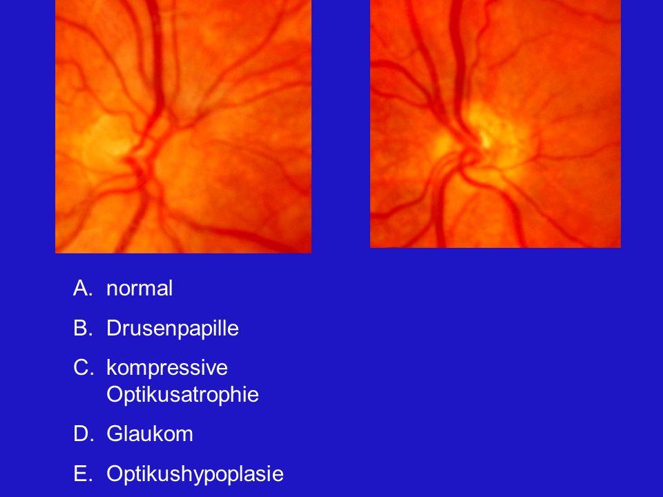 A.normal B.Drusenpapille C.kompressive Optikusatrophie D.Glaukom E.Optikushypoplasie