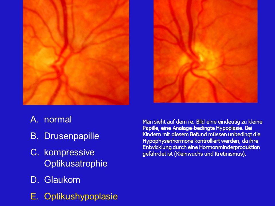 A.normal B.Drusenpapille C.kompressive Optikusatrophie D.Glaukom E.Optikushypoplasie Man sieht auf dem re.
