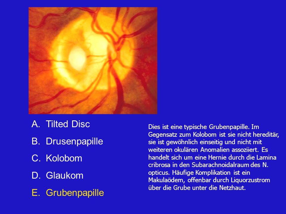 A.Tilted Disc B.Drusenpapille C.Kolobom D.Glaukom E.Grubenpapille Dies ist eine typische Grubenpapille.