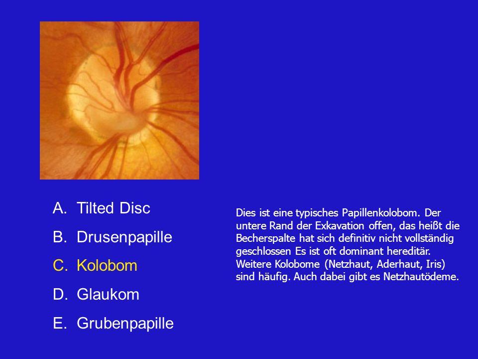 A.Tilted Disc B.Drusenpapille C.Kolobom D.Glaukom E.Grubenpapille Dies ist eine typisches Papillenkolobom.