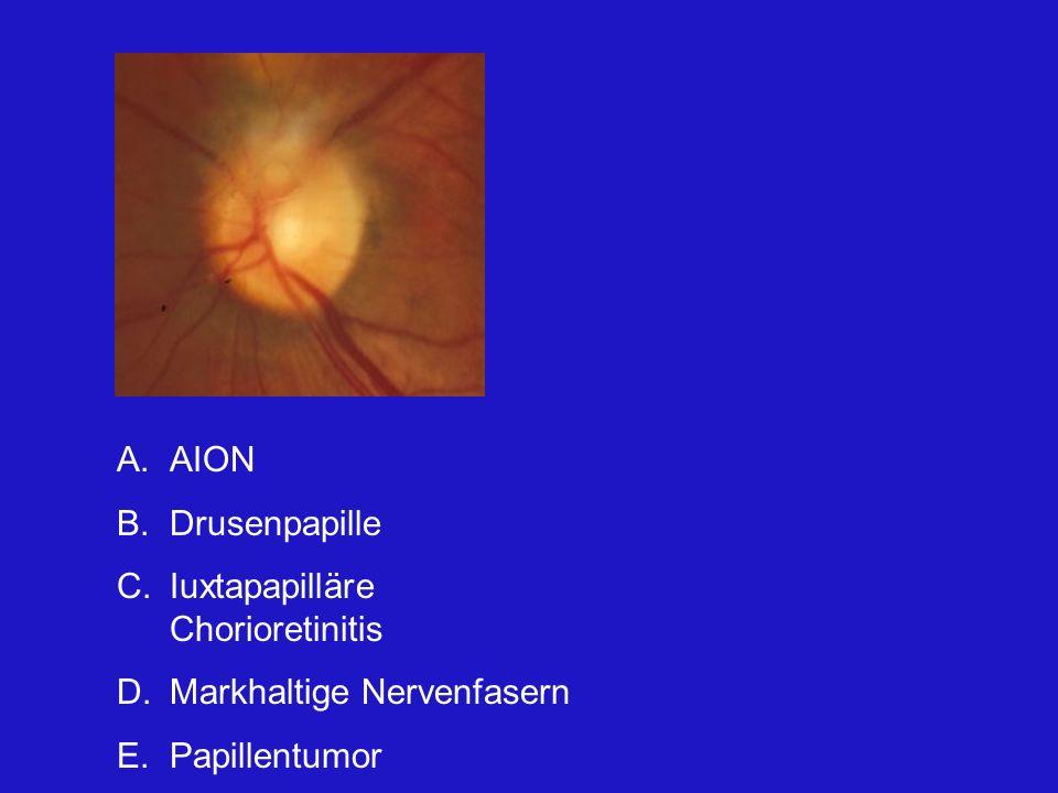 A.AION B.Drusenpapille C.Iuxtapapilläre Chorioretinitis D.Markhaltige Nervenfasern E.Papillentumor Der Befund ist schwer von einem Tumor oder einer AION abzugrenzen.