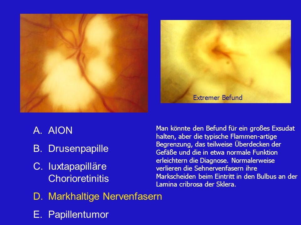 A.AION B.Drusenpapille C.Iuxtapapilläre Chorioretinitis D.Markhaltige Nervenfasern E.Papillentumor Man könnte den Befund für ein großes Exsudat halten, aber die typische Flammen-artige Begrenzung, das teilweise Überdecken der Gefäße und die in etwa normale Funktion erleichtern die Diagnose.